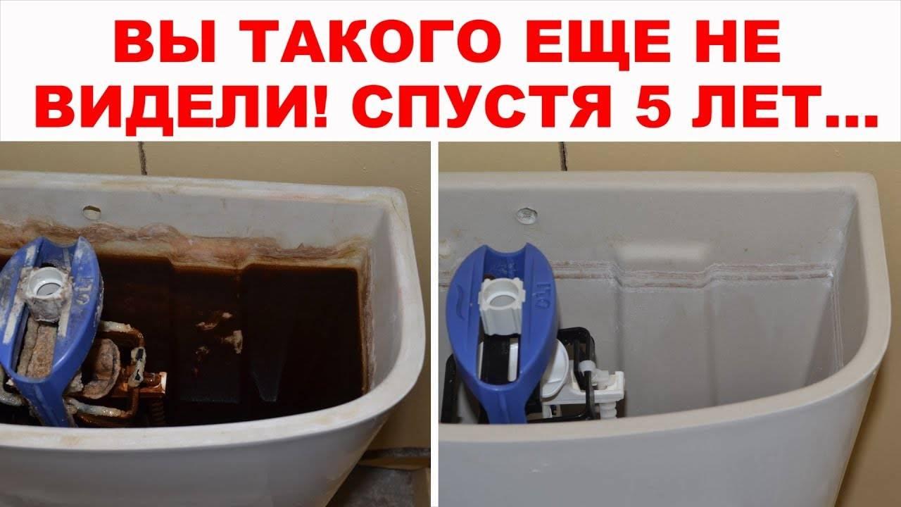 Чем мыть унитаз при септике с бактериями
